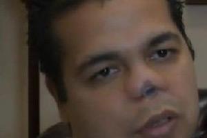 纽约帅哥22次整形手术后鼻子感染被割掉
