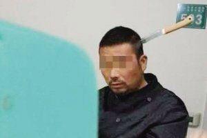 延吉男子头插水果刀淡定就医:被弟弟扔来的刀误伤