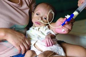 深圳女婴患罕见病生长缓慢 一年仅长0.1斤