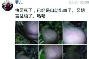 """广东汕头亲生父亲虐子 网上晒照片称""""快要死了"""""""